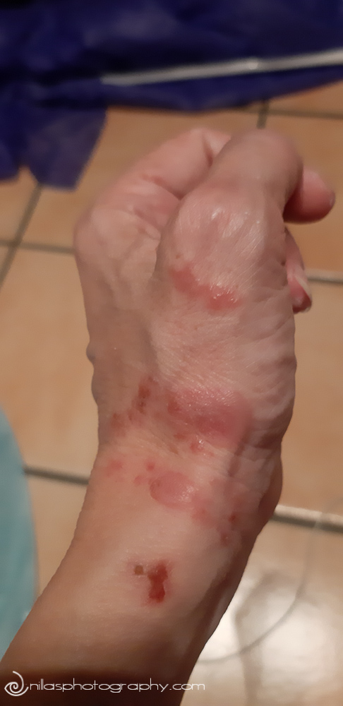 Spider's bite hand, Brisbane, Australia, Oceania